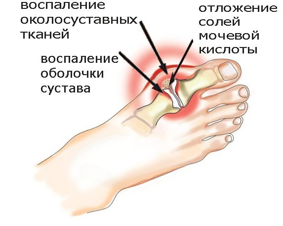 Tratament genunchi in spb